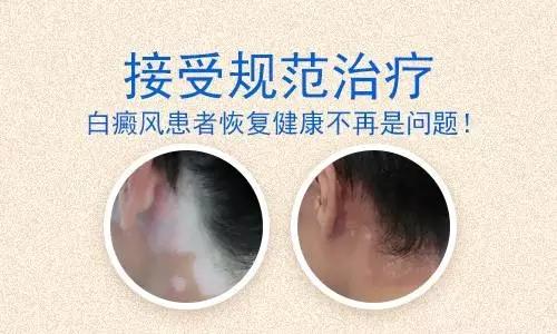 昆明治白癜风最好医院:怎么治疗背部的白斑